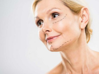 Fight Signs of Aging