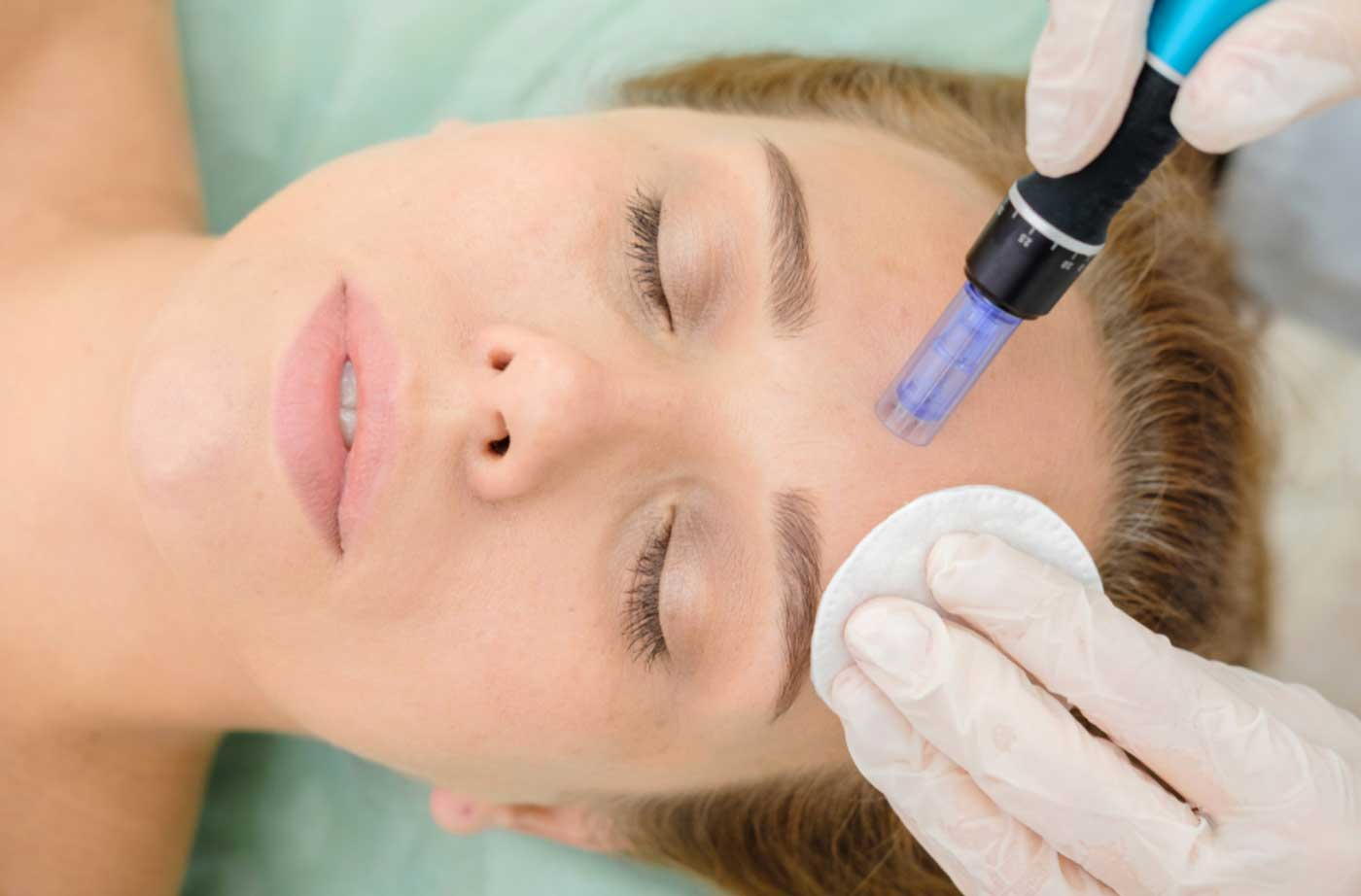 Why are Celebs obsessed with Microneedling