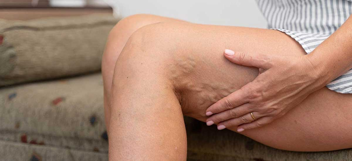 What causes spider veins